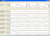 Screenshot of PRANA Profiler: Sleep EEG bands